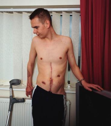 British soldier (injured in Iraq) Bristol 2008